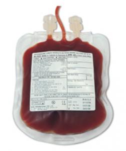 immune-mediated hemolytic anemia