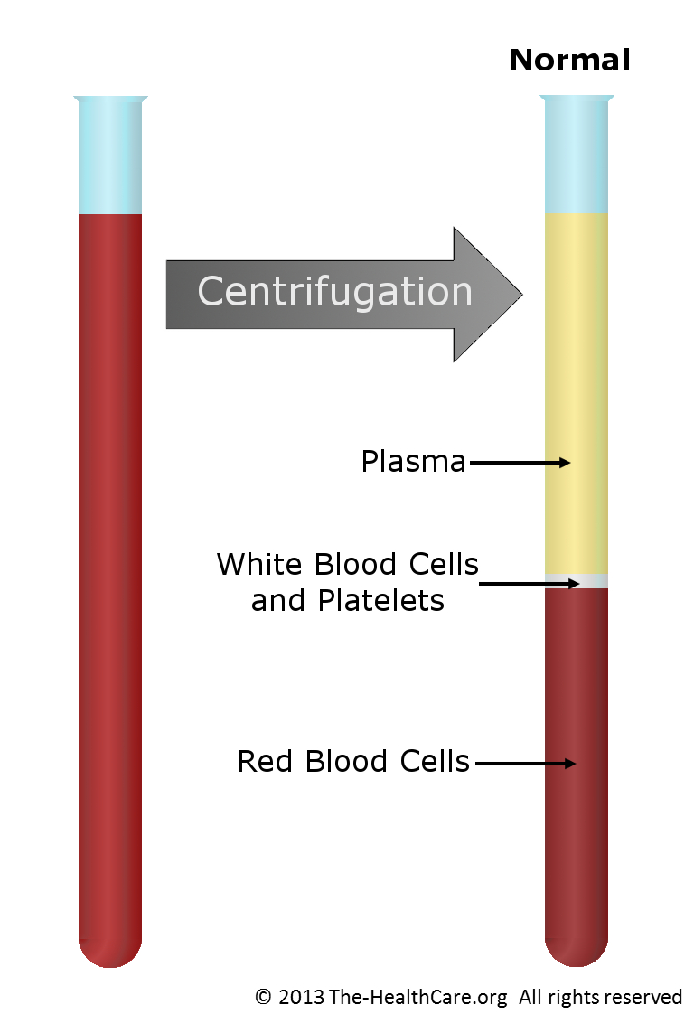 Low Red Blood Cells - Understanding Anemia