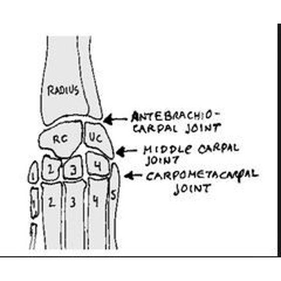 carpal arthrodesis