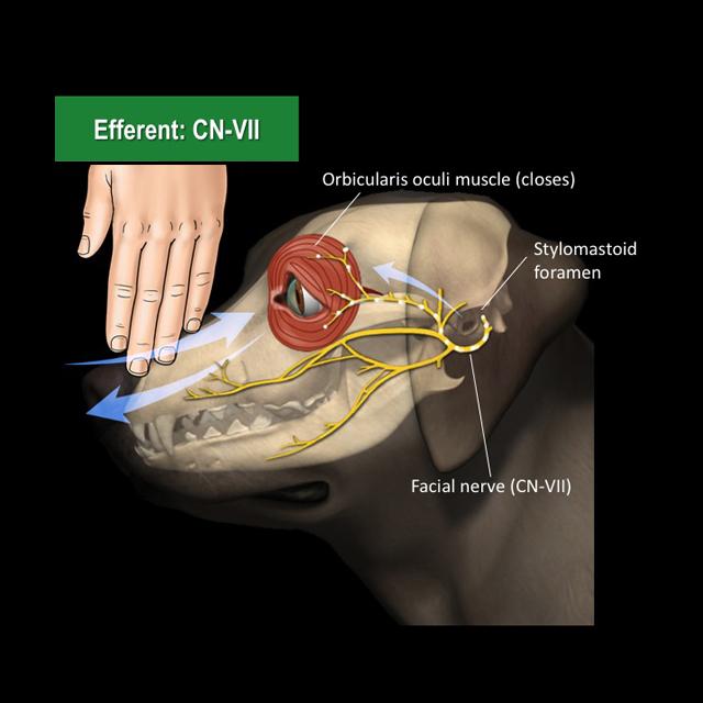 facial nerve paralysis